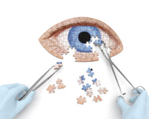 St. Joseph Home Health Update: Exploring a Non-Surgical Solution to Cataracts